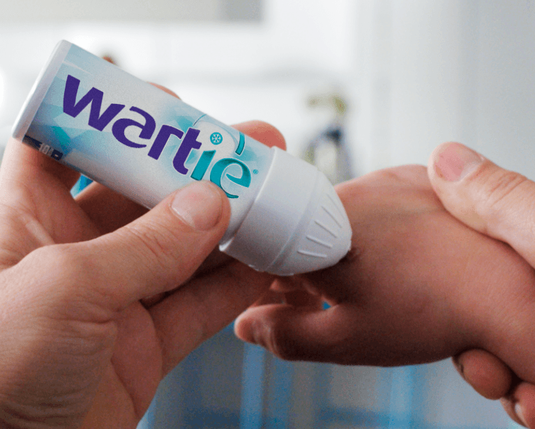 Wartie is easy to use, precise and effective !